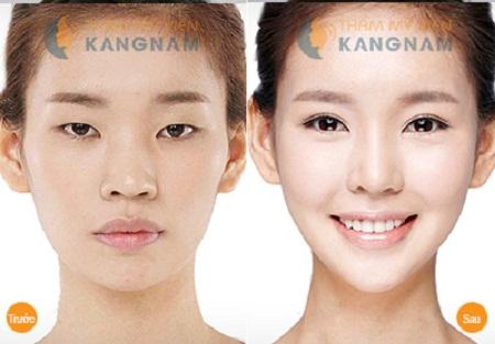 phẫu thuật mắt to tại kangnam