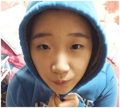 Bấm mí ở Kangnam