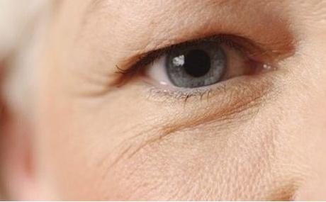Nên chữa sụp mí mắt ở người già bằng cách nào? 1