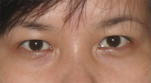"""""""Mách bạn"""" cách đơn giản để sửa mí mắt bị sụp1"""