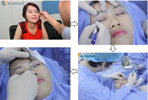 Quy trình và thời gian tiến hành cắt mí mắt tại TMV Kangnam