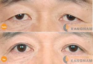 Lấy mỡ mí mắt dưới công nghệ Hàn Quốc có nguy hiểm không?3