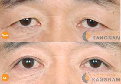 Lấy mỡ mí mắt có nguy hiểm không? Tư vấn thẩm mỹ 1