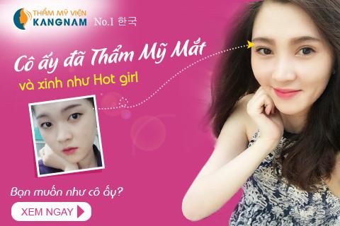 Nhiều khách hàng sở hữu mắt 2 mí đều đẹp nhờ thẩm mỹ mắt tại Kangnam