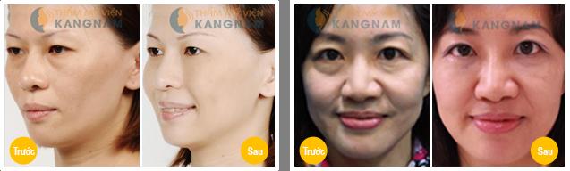 Có cách nào lấy mỡ mắt không phẫu thuật không?