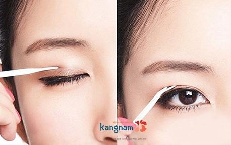 Mắt 2 mí không cần phẫu thuật
