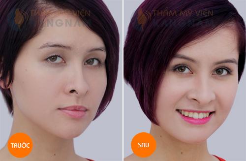 Phương pháp thẩm mỹ mắt nào bạn nên lựa chọn?32