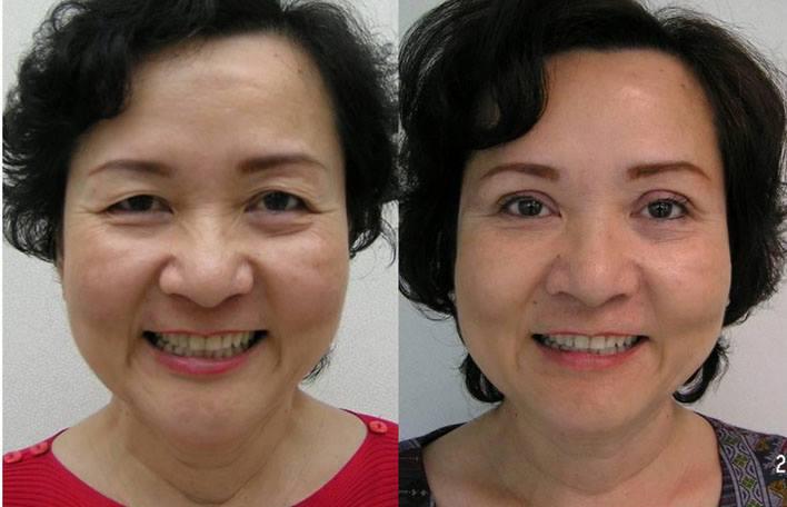 Nên chữa sụp mí mắt ở người già bằng cách nào?2