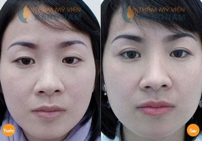 Cắt mí mắt Kangnam's Eyelid – Mắt 2 mí đều đẹp trẻ trung bảo hành vĩnh viễn8999
