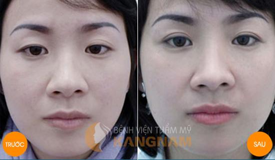Top 4 cách nâng mí mắt bị sụp nhanh và hiệu quả nhất4567