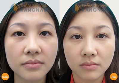 Cắt mí mắt Kangnam's Eyelid – Mắt 2 mí đều đẹp trẻ trung bảo hành vĩnh viễn999