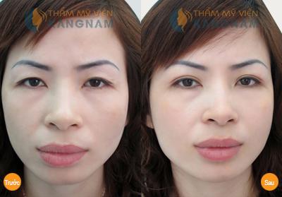 Cắt mí mắt Kangnam's Eyelid – Mắt 2 mí đều đẹp trẻ trung bảo hành vĩnh viễn899
