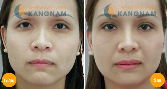 Tuyệt chiêu trị bọng mắt bằng phương pháp tự nhiên8