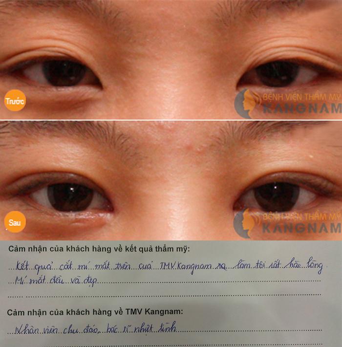 Nâng mí mắt ở đâu đẹp nhất tại Hà Nội và TPHCM? Khách hàng chia sẻ