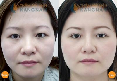 Cắt mí mắt Kangnam's Eyelid – Mắt 2 mí đều đẹp trẻ trung bảo hành vĩnh viễn889