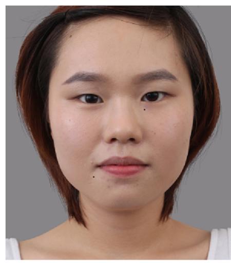 Cận cảnh quy trình tạo khóe mắt đẹp tự nhiên theo công nghệ Hàn Quốc1