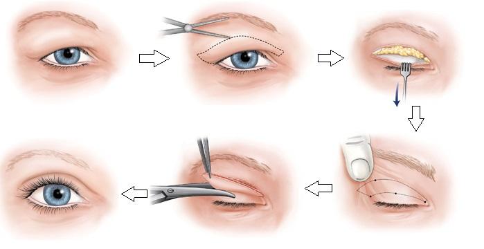Phẫu thuật loại bỏ bọng mỡ mí mắt có gây xâm lấn không2