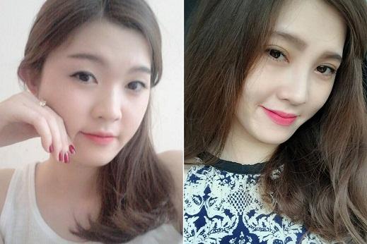 Bấm mí mắt Hàn Quốc có để lại sẹo không? Bác sĩ tư vấn 5
