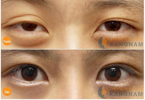 Mắt to mắt nhỏ phải làm sao để cải thiện?788