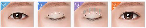 Mắt một mí có cách nào khắc phục được không?888