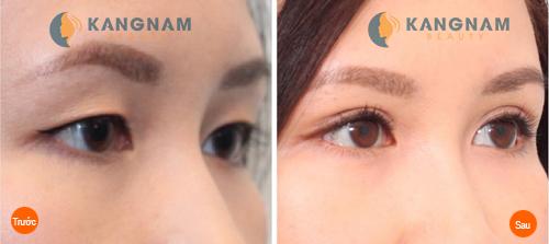 Bấm mí mắt Hàn Quốc có để lại sẹo không? Bác sĩ tư vấn 2