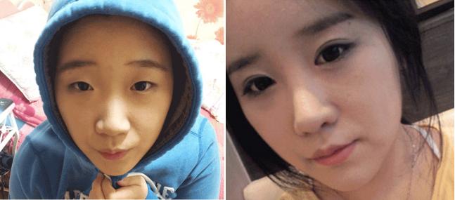 Bấm mí mắt Hàn Quốc có để lại sẹo không? 3