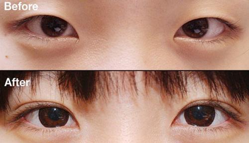 Bấm mí mắt duy trì được bao lâu?788