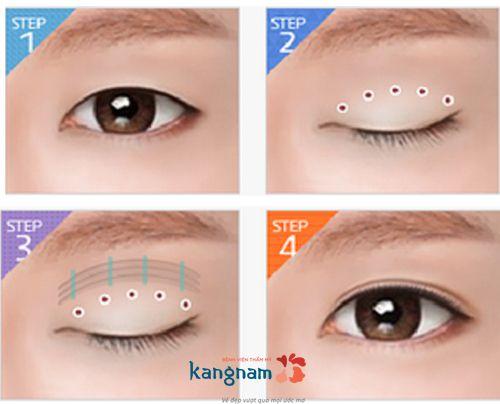 mắt 2 mí là mắt như thế nào