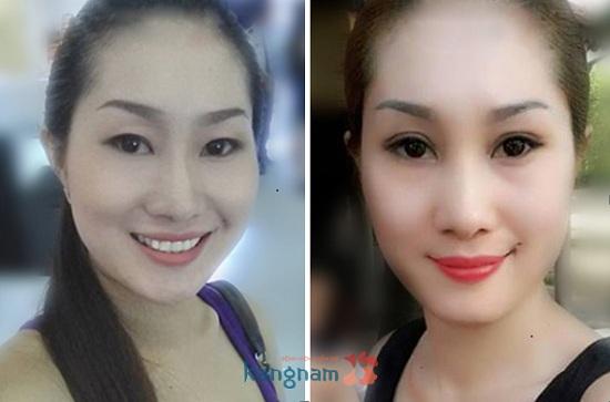Chị Ngọc sau nâng mí mắt bị sụp tại Kangnam