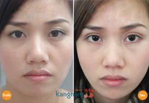Hình ảnh khách hàng Kangnam sau nâng mí mắt bị sụp