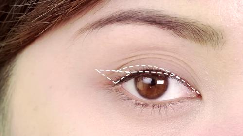 Cách khắc phục mắt nhiều mí cho đôi mắt 2 mí đẹp lung linh8909