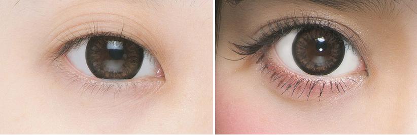 Cách khắc phục mắt nhiều mí cho đôi mắt 2 mí đẹp lung linh8999