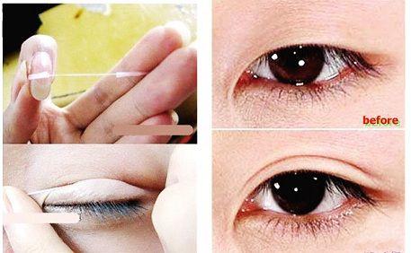 mắt nhiều mí3
