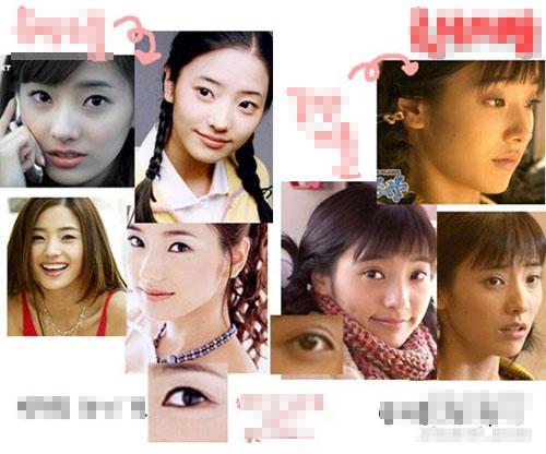 Bấm mí mắt Hàn Quốc là gì và được thực hiện như thế nào?8999