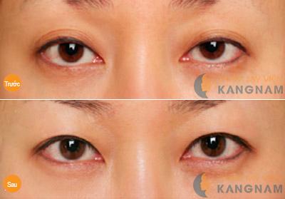 TMV Kangnam chữa sụp mí mắt có an toàn không? 7