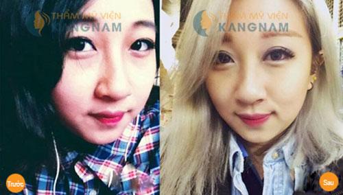 Bấm mí mắt Hàn Quốc là gì và được thực hiện như thế nào?7888