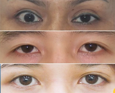 Các trường hợp cắt mí mắt bị hỏng
