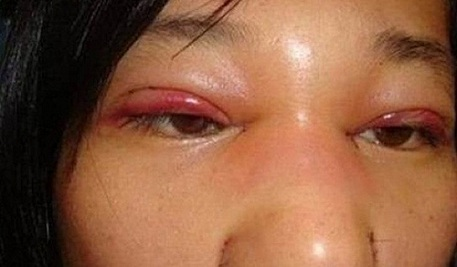 cắt mí mắt bị hỏng-4