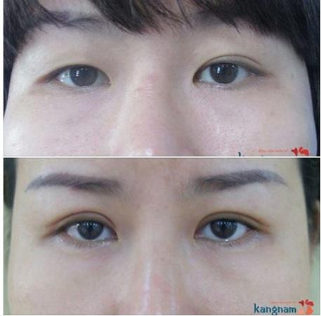 cắt mí mắt bị hỏng-3