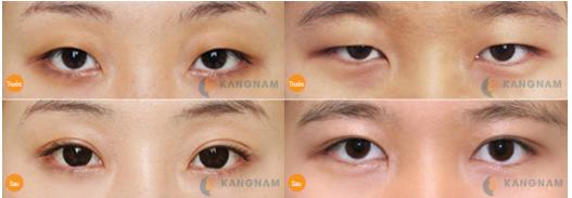 Phẫu thuật mắt to có nguy hiểm không? Chia sẻ kinh nghiệm thực tế