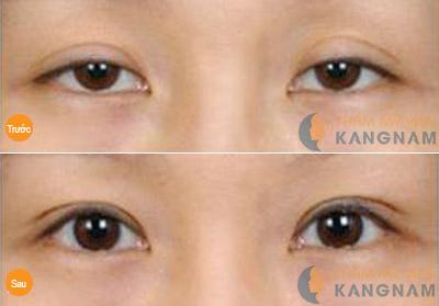 Khách hàng chia sẻ chữa sụp mí mắt có đau không?