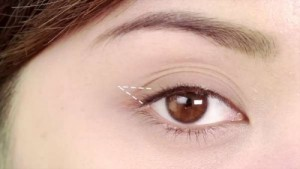 Mắt 3 mí là gì và có thể chỉnh sửa mắt 3 mí được không? 1