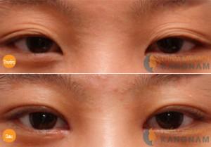 Mắt 3 mí là gì và có thể chỉnh sửa mắt 3 mí được không? 4