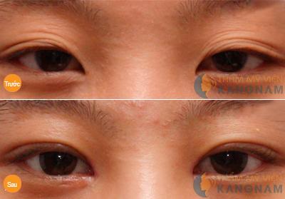 Mắt mí rưỡi là như thế nào? Cách khắc phục mắt mí rưỡi - 9