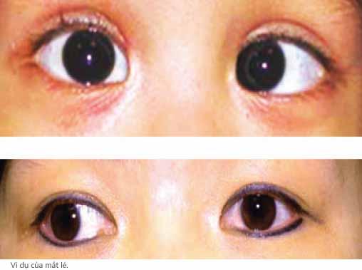 Nguyên nhân gây bị mắt lé là gì?