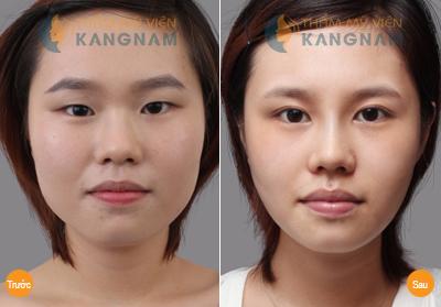 Phẫu thuật mắt to có nguy hiểm không? Chia sẻ từ khách hàng