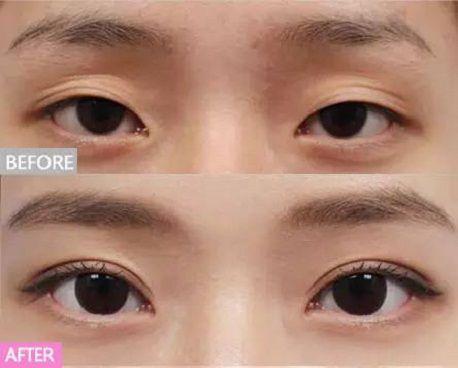 Bấm mí mắt Hàn Quốc có để lại sẹo không1