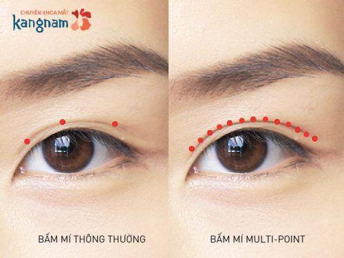 bấm mí mắt giữ được bao lâu 2