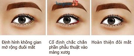 thẩm mỹ mắt to có để lại sẹo không-2