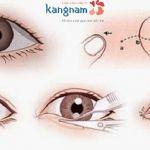 Phẫu thuật thẩm mỹ mắt to có để lại sẹo không?